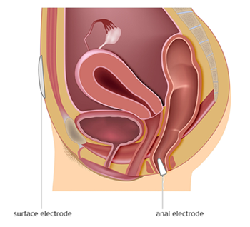 Electrotherapy - fecal incontinence