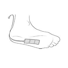 INCEDO™ integrierte Elektrode