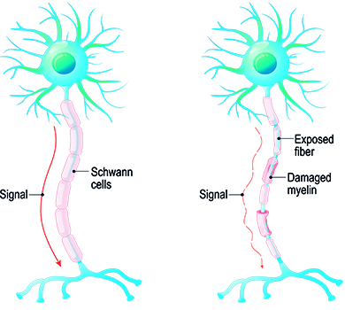 Causes of multiple sclerosis