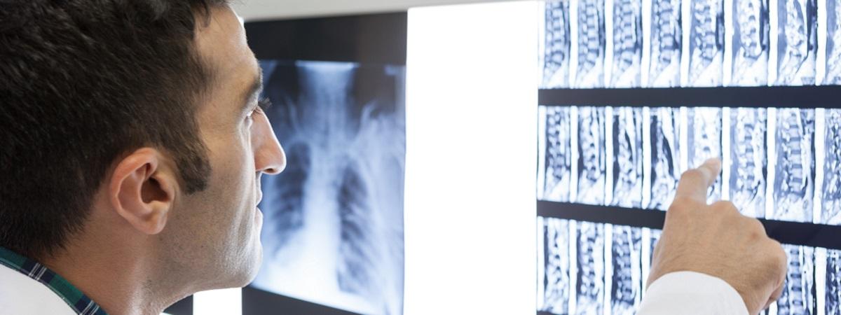 Diagnose eines Bandscheibenvorfalls