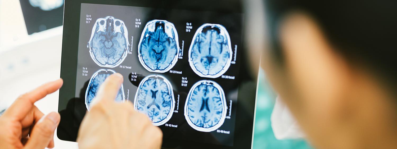 Diagnose der infantilen Zerebralparese