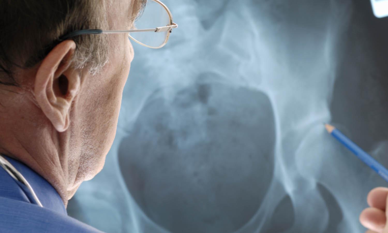 Diagnosis: hip arthrosis