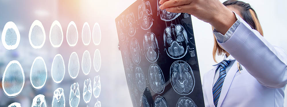 Diagnosis of traumatic brain injury