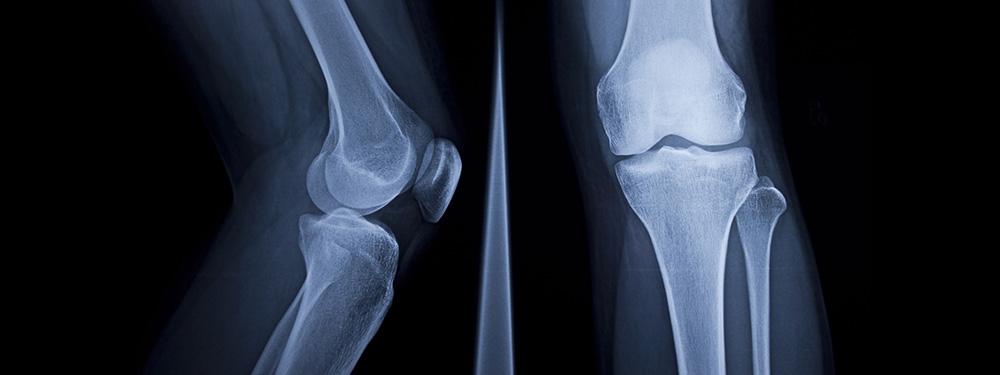 Diagnosis of gonarthrosis (knee arthrosis)