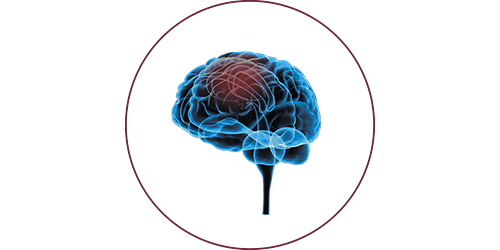 FES after stroke | STIWELL® Neurorehabilitation