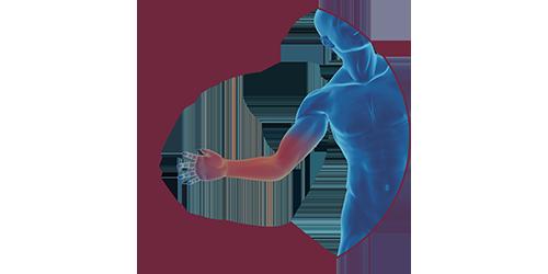 FES bei Handverletzung | STIWELL Neurorehabilitation