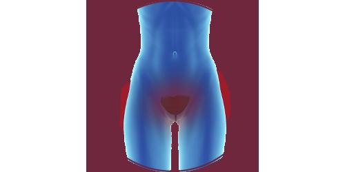 FES for incontinence | STIWELL Neurorehabilitation