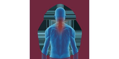 FES bei Tetraplegie | STIWELL Neurorehabilitation