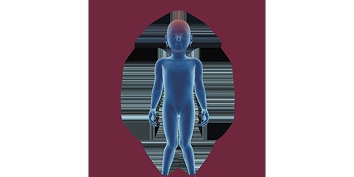 FES bei Zerebralparese | STIWELL Neurorehabilitation