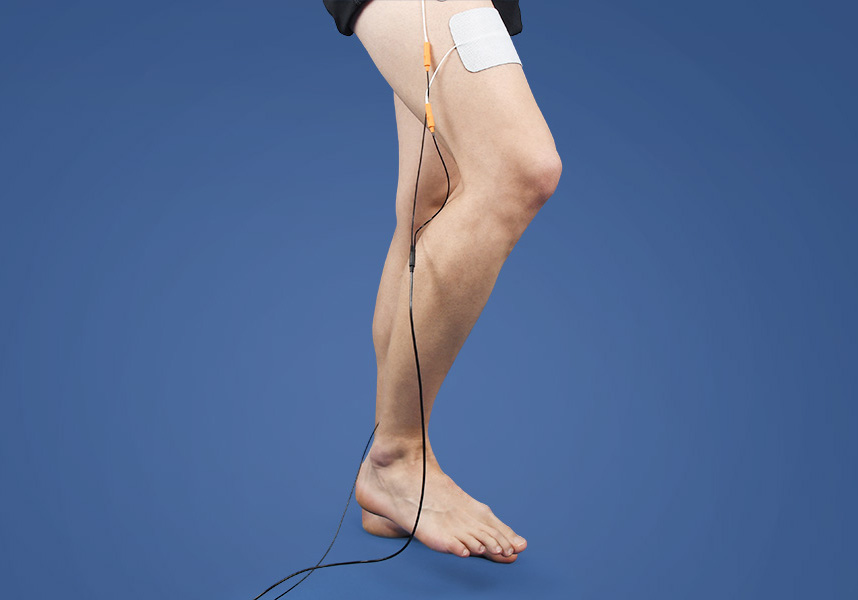 Functional electrical stimulation for the treatment of ataxia