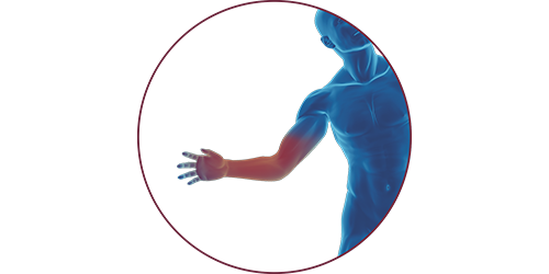 FES for hand injury | STIWELL Neurorehabilitation