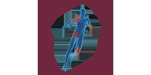 FES for orthopaedics & traumatology | STIWELL® Neurorehabilitation