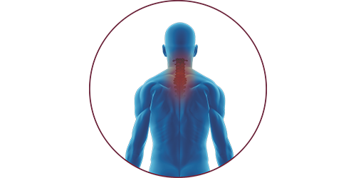 FES for tetraplegia | STIWELL Neurorehabilitation