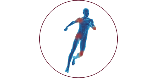 FES in der Orthopädie & Traumatologie | STIWELL Neurorehabilitation