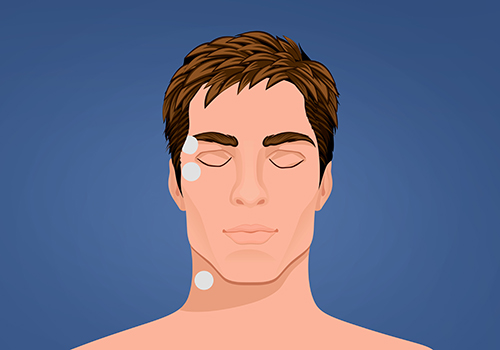 STIWELL therapy | activation of eyelid closure
