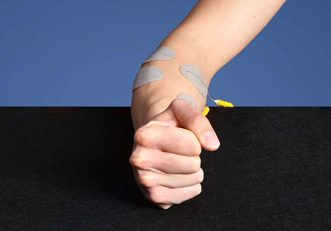 Electrical stimulation to reduce swelling in patients with CRPS