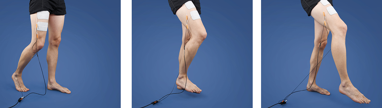 Cruciate ligament rupture: healing time and process