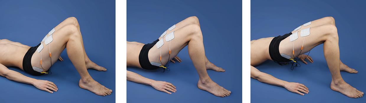 Rehabilitation for hip arthrosis