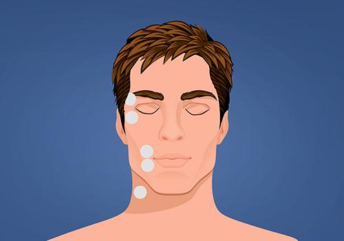 STIWELL Therapie | Lidschluss - Mund entspannt (EMG)