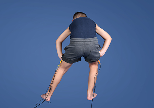 STIWELL Therapie | Koordinationstraining Beine (Zerebralparese, ICP)