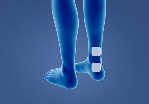 STIWELL® Therapie | Überaktive Blase