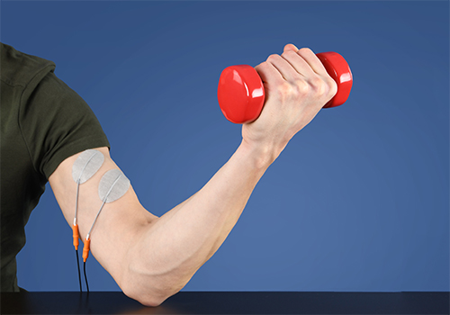 Elektrotherapie bei muskulärer Dysbalance
