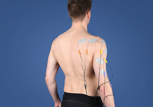STIWELL Therapie   brachialis Läsion