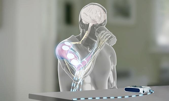 Functional principle of FES | STIWELL Neurorehabilitation