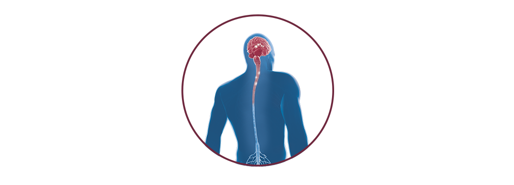 STIWELL   functional electrical stimulation (FES)  for multiple sclerosis