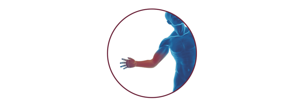 STIWELL | Funktionelle Elektrostimulation (FES) bei Handverletzung