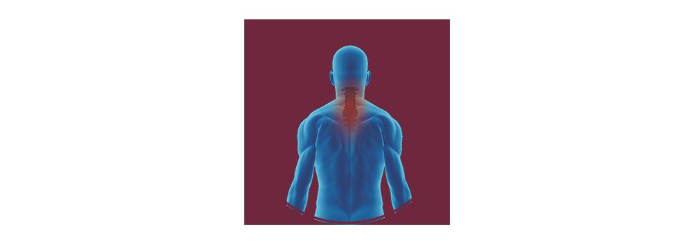 STIWELL |Funktionelle Elektrostimulation (FES) bei inkompletter Tetraplegie