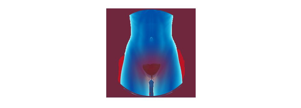 STIWELL   Funktionelle Elektrostimulation (FES) bei Inkontinenz