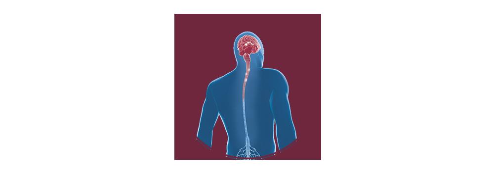 STIWELL | Funktionelle Elektrostimulation (FES) bei Multipler Sklerose