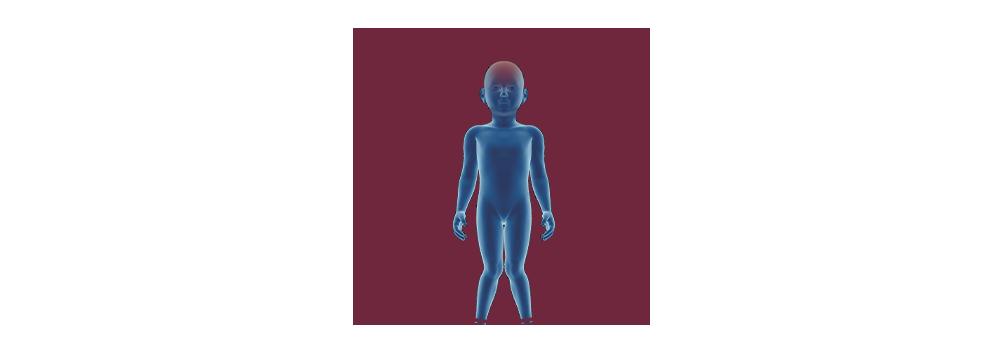 STIWELL | Funktionelle Elektrostimulation (FES) bei Zerebralparese