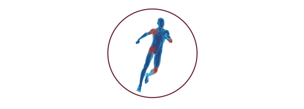 STIWELL | Funktionelle Elektrostimulation (FES) in der Orthopädie