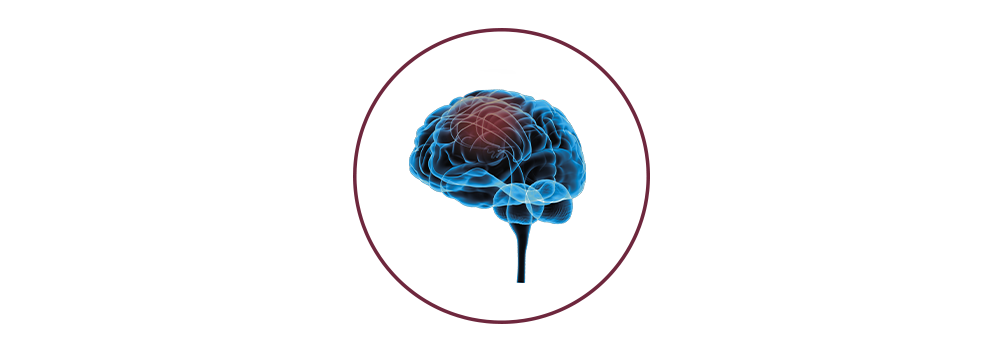 STIWELL | Funktionelle Elektrostimulation (FES) nach Schlaganfall