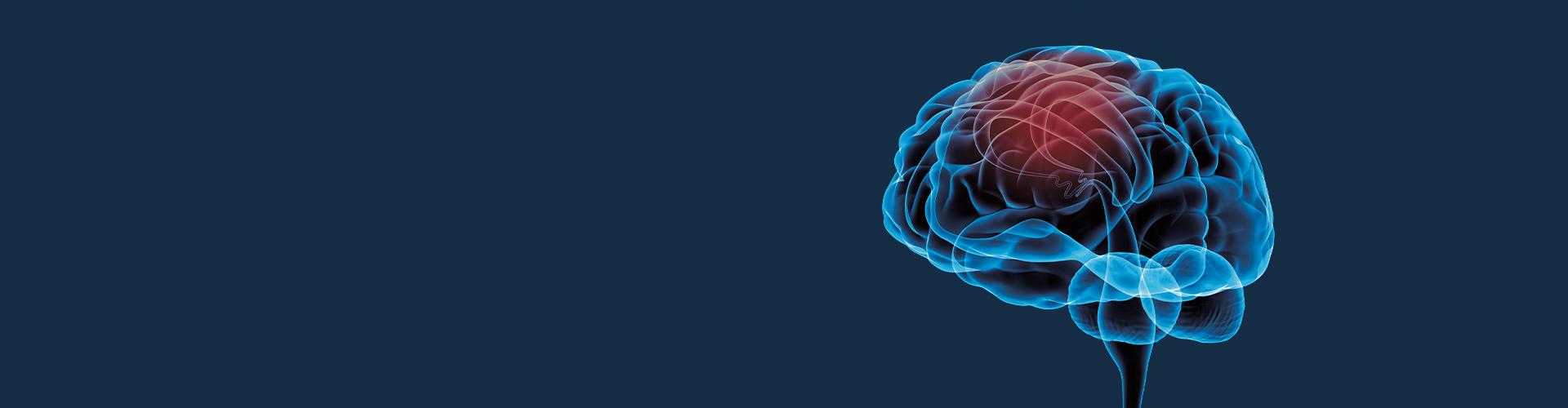 STIWELL Neurorehabilitation | Anwendungen in der Neurologie