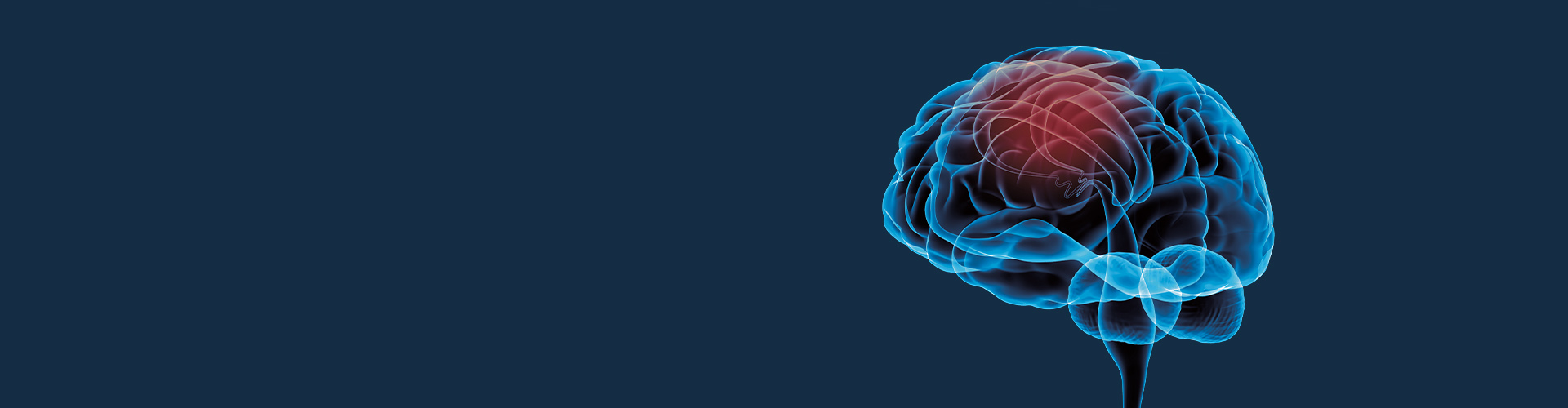 STIWELL Neurorehabilitation | applications in neurology