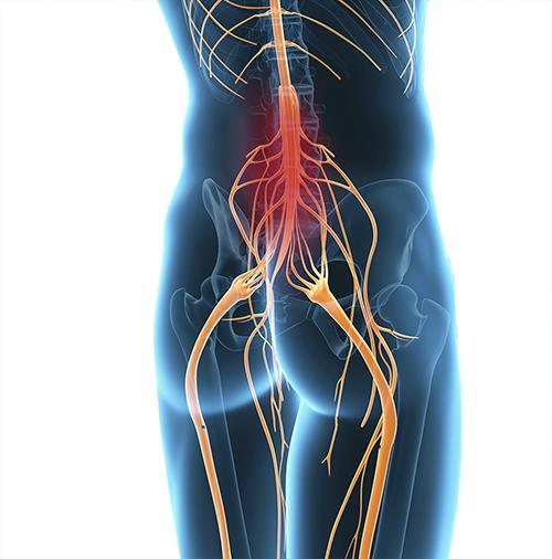 Symptome bei Querschnittslähmung