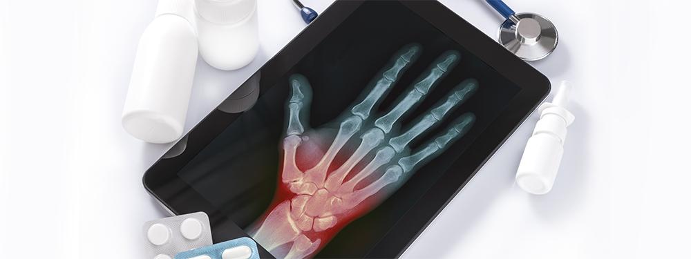 Symptoms of complex regional pain syndrome (CRPS)
