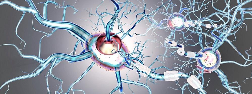 Was ist Multiple Sklerose?