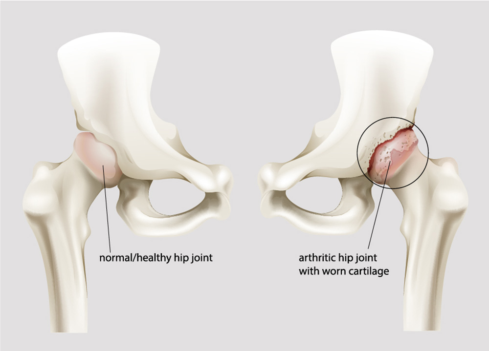 What is hip arthrosis?